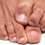 Противогрибковые средства защиты  для кожи рук и ног