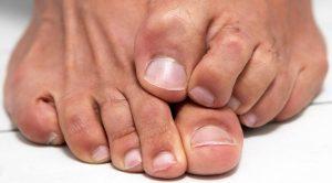Противогрибковый спрей для ног
